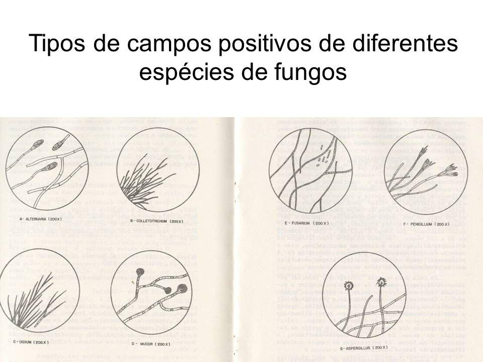 Tipos de campos positivos de diferentes espécies de fungos