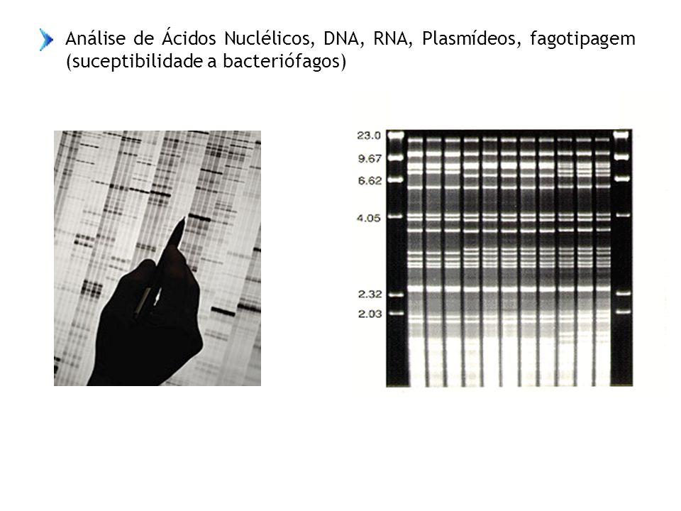 Análise de Ácidos Nuclélicos, DNA, RNA, Plasmídeos, fagotipagem (suceptibilidade a bacteriófagos)