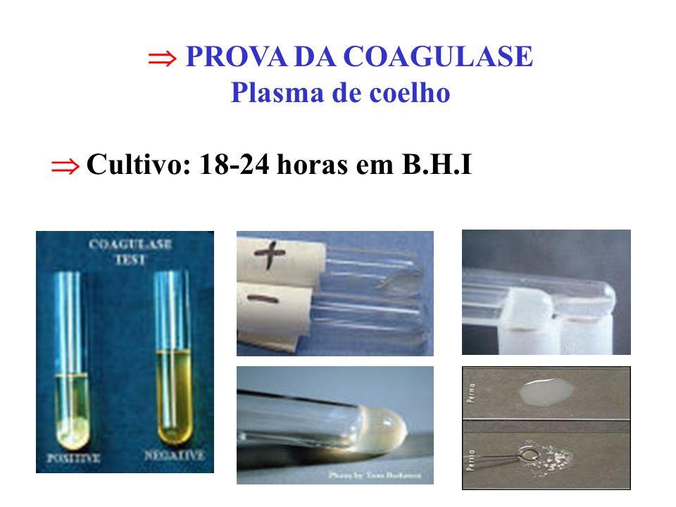 PROVA DA COAGULASE Plasma de coelho Cultivo: 18-24 horas em B.H.I