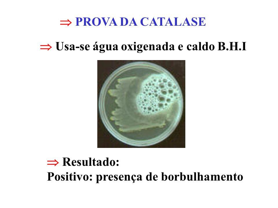 PROVA DA CATALASE Usa-se água oxigenada e caldo B.H.I Resultado: Positivo: presença de borbulhamento