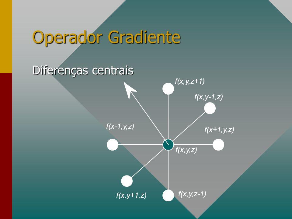 Operador Gradiente f(x+1,y,z) f(x-1,y,z) f(x,y,z-1) f(x,y,z+1) f(x,y+1,z) f(x,y-1,z) f(x,y,z) Diferenças centrais