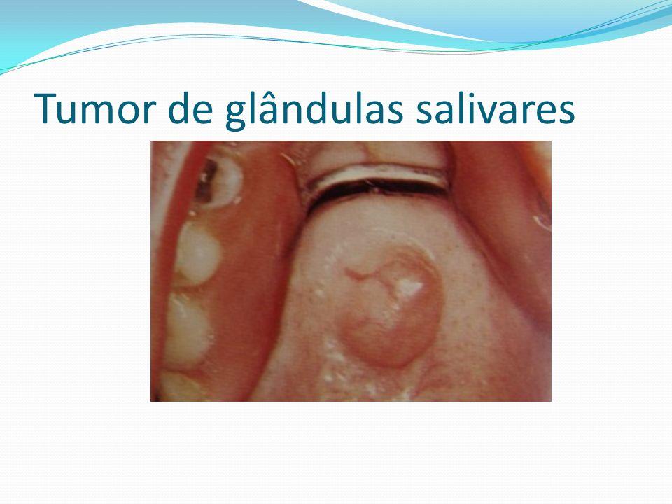 Tumor de glândulas salivares