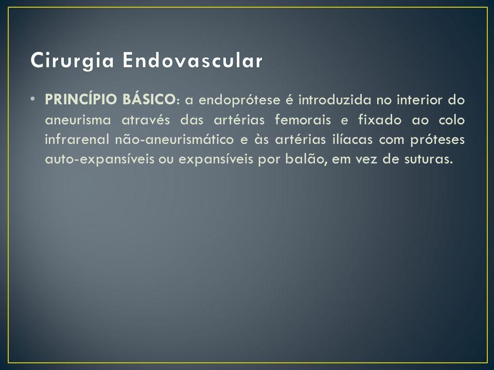 PRINCÍPIO BÁSICO: a endoprótese é introduzida no interior do aneurisma através das artérias femorais e fixado ao colo infrarenal não-aneurismático e à