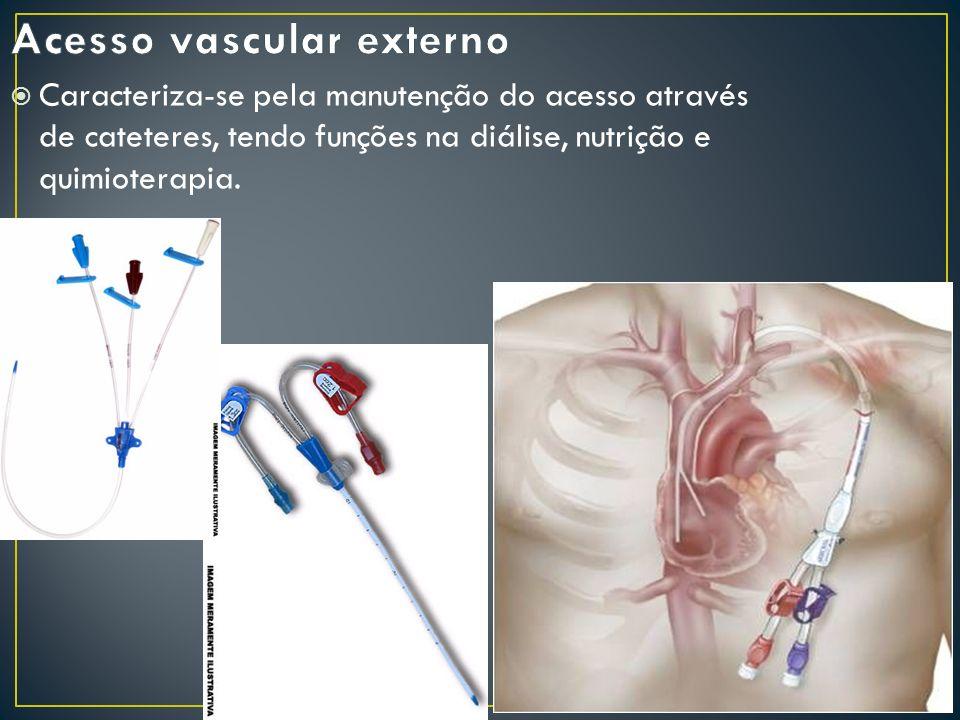 COMPLICAÇÕES: Específicas da cateterização Pneumotórax Hemotórax Punção arterial Arritmia cardíaca Lesão do ducto torácico Inespecíficas da cateterização Infecção Trombose venosa profunda Embolia gasosa Secção do cateter