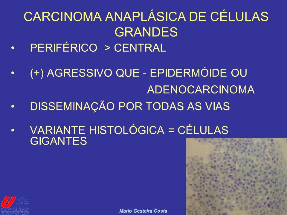 12 CARCINOMA ANAPLÁSICA DE CÉLULAS GRANDES PERIFÉRICO > CENTRAL (+) AGRESSIVO QUE - EPIDERMÓIDE OU ADENOCARCINOMA DISSEMINAÇÃO POR TODAS AS VIAS VARIA