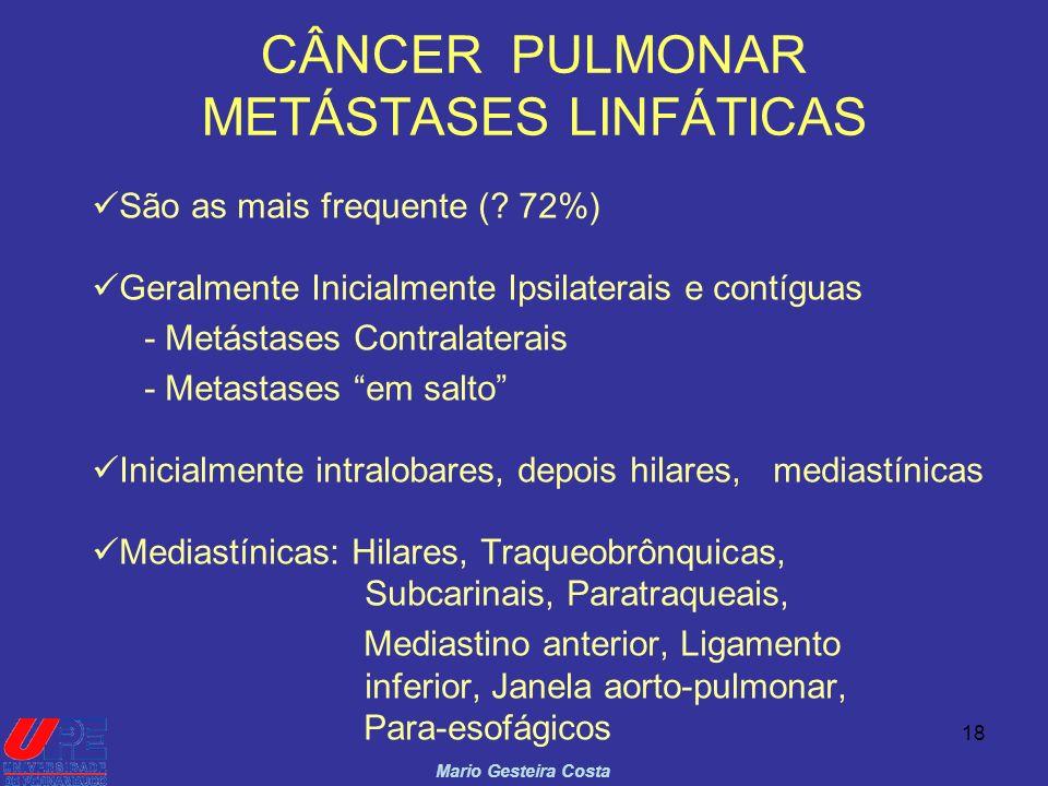 18 CÂNCER PULMONAR METÁSTASES LINFÁTICAS Mario Gesteira Costa São as mais frequente (? 72%) Geralmente Inicialmente Ipsilaterais e contíguas - Metásta