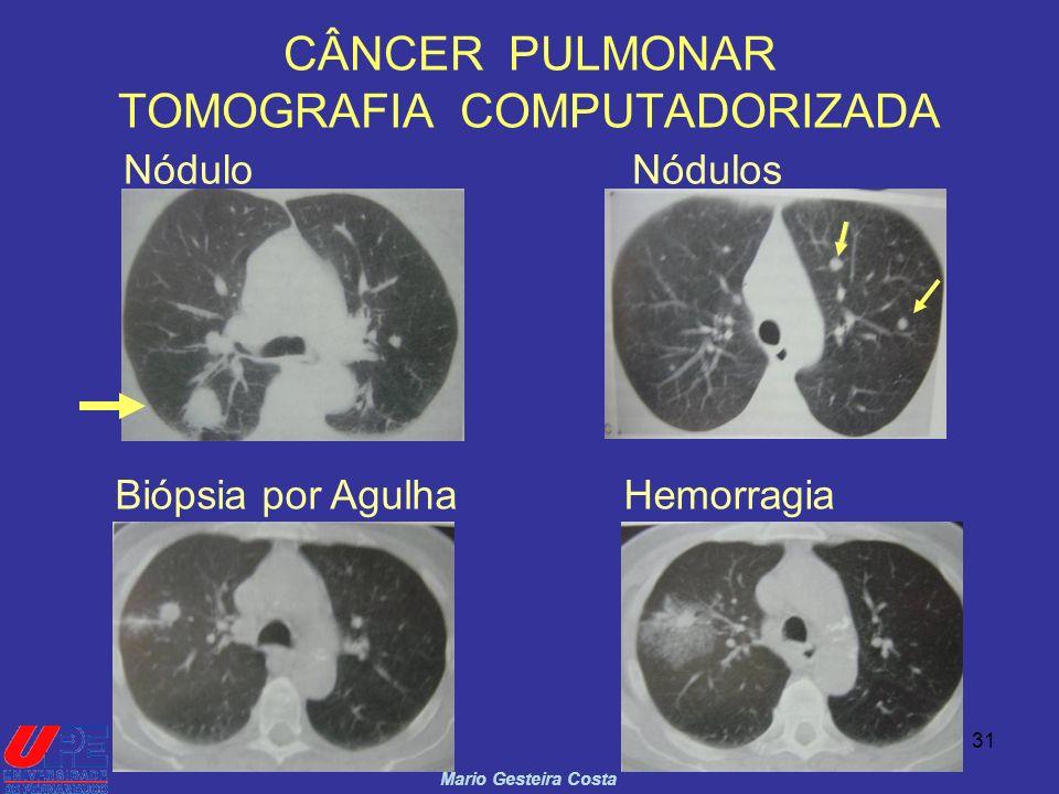 31 CÂNCER PULMONAR TOMOGRAFIA COMPUTADORIZADA Mario Gesteira Costa NóduloNódulos Biópsia por AgulhaHemorragia