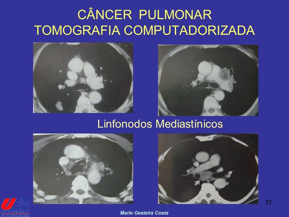 33 CÂNCER PULMONAR TOMOGRAFIA COMPUTADORIZADA Mario Gesteira Costa Linfonodos Mediastínicos