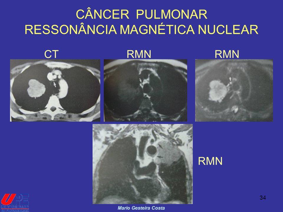34 CÂNCER PULMONAR RESSONÂNCIA MAGNÉTICA NUCLEAR Mario Gesteira Costa CTRMN