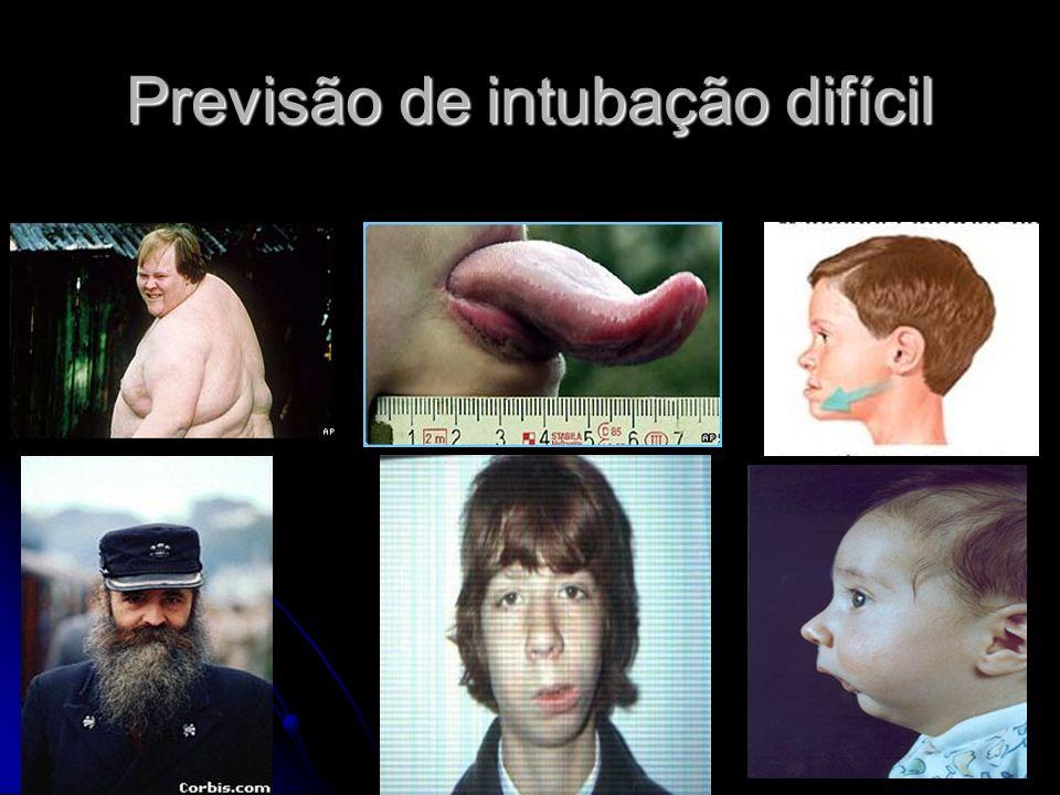 Previsão de intubação difícil
