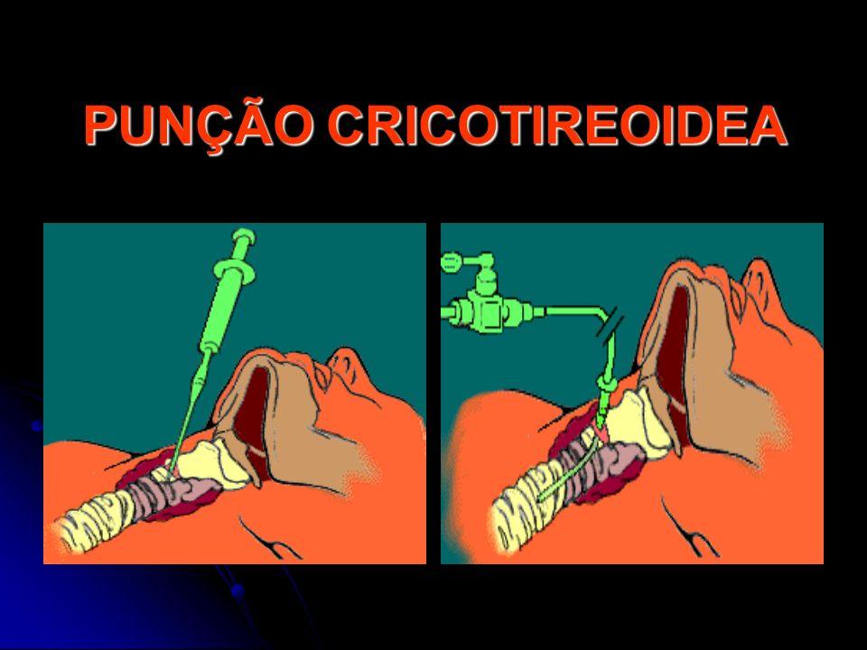 PUNÇÃO CRICOTIREOIDEA