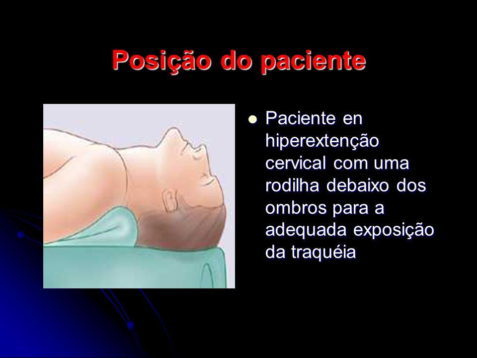 Posição do paciente Paciente en hiperextenção cervical com uma rodilha debaixo dos ombros para a adequada exposição da traquéia Paciente en hiperextenção cervical com uma rodilha debaixo dos ombros para a adequada exposição da traquéia