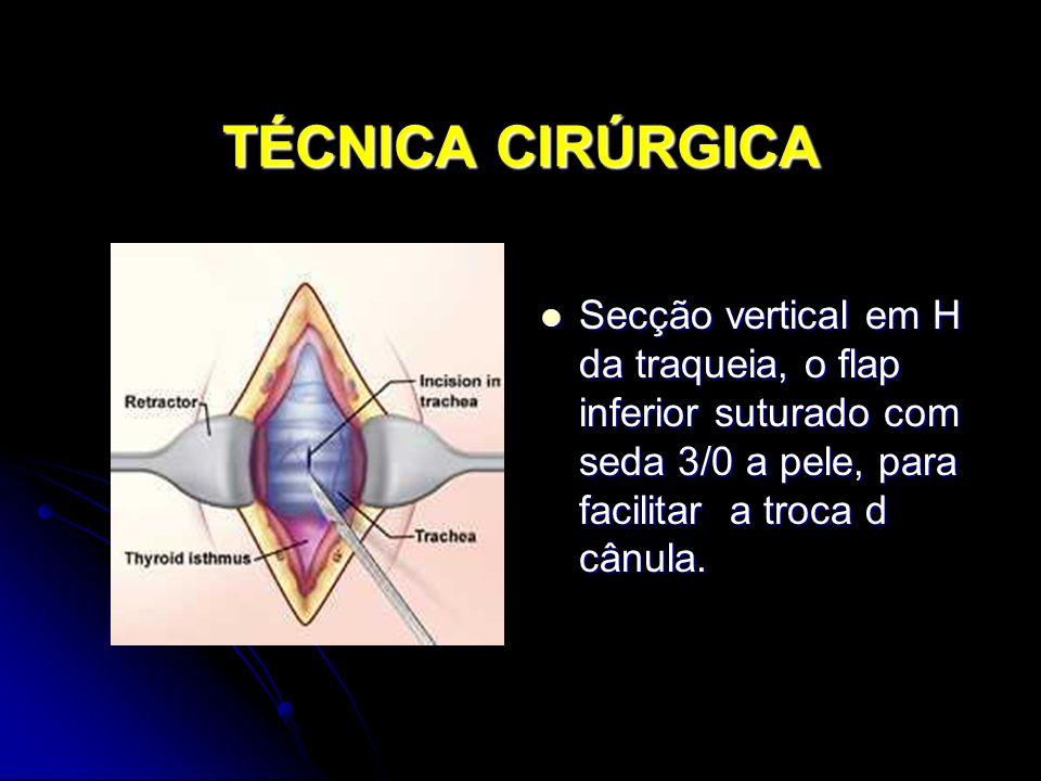 TÉCNICA CIRÚRGICA Secção vertical em H da traqueia, o flap inferior suturado com seda 3/0 a pele, para facilitar a troca d cânula.