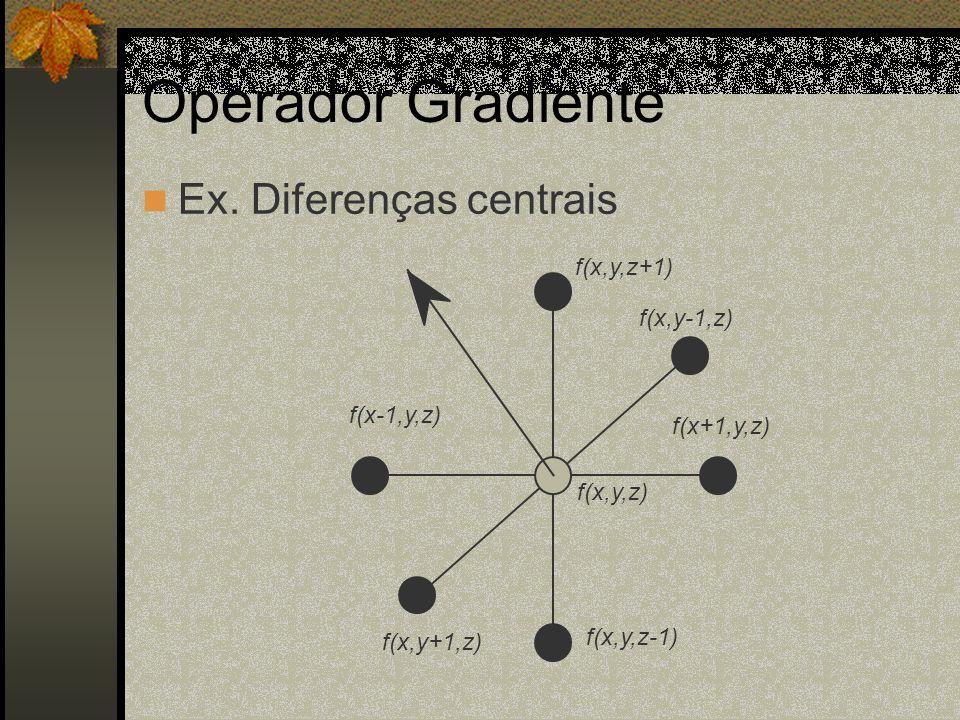 Operador Gradiente f(x+1,y,z) f(x-1,y,z) f(x,y,z-1) f(x,y,z+1) f(x,y+1,z) f(x,y-1,z) f(x,y,z) Ex. Diferenças centrais