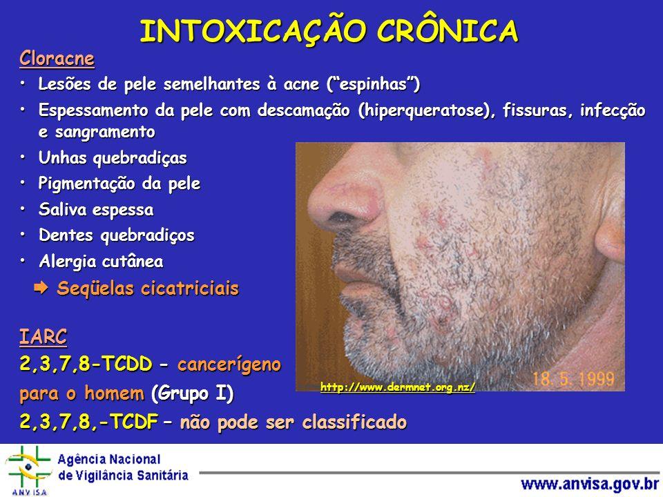 http://www.dermnet.org.nz/ Cloracne Lesões de pele semelhantes à acne (espinhas)Lesões de pele semelhantes à acne (espinhas) Espessamento da pele com