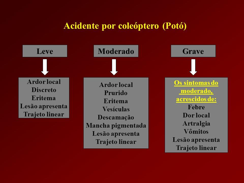 Fonte: Atlas de Patologia Humana Provocada por la Agression de Animales – Buenos Aires 2001 Acidentes por Paederus