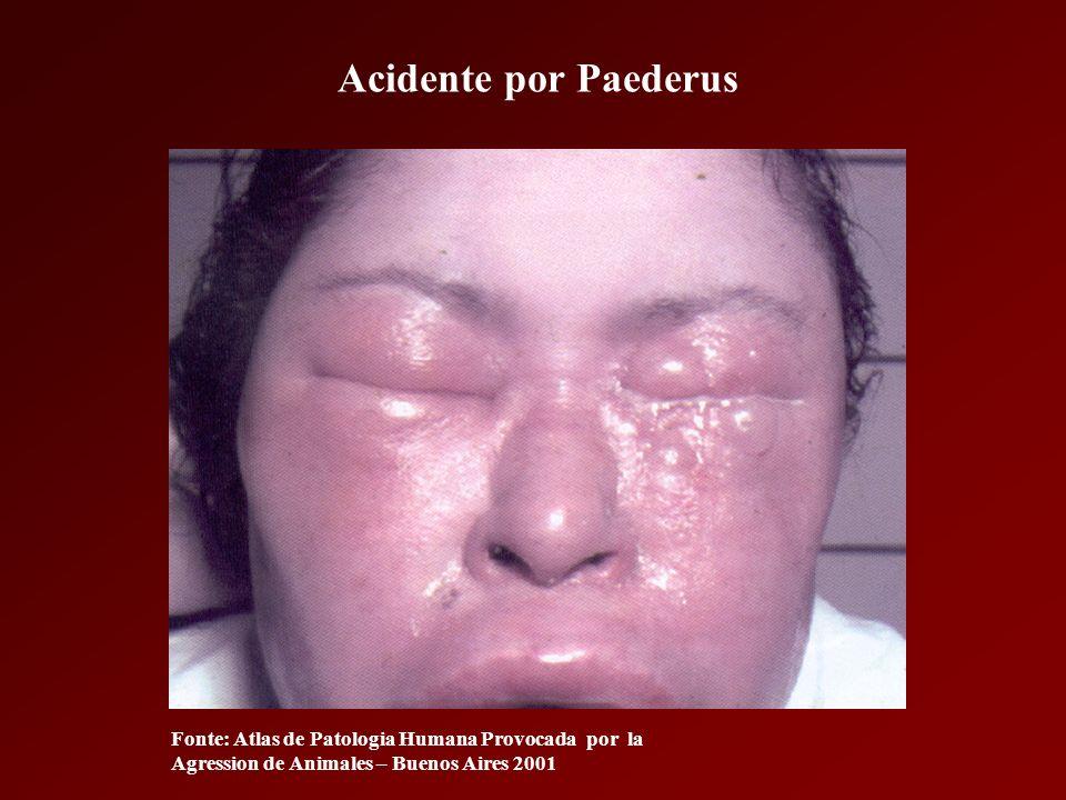 Acidente por coleóptero (Potó) Tratamento Lavar o local com água corrente e sabão Pincelar tintura de iodo Corticoterapia local Analgésico, se necessário