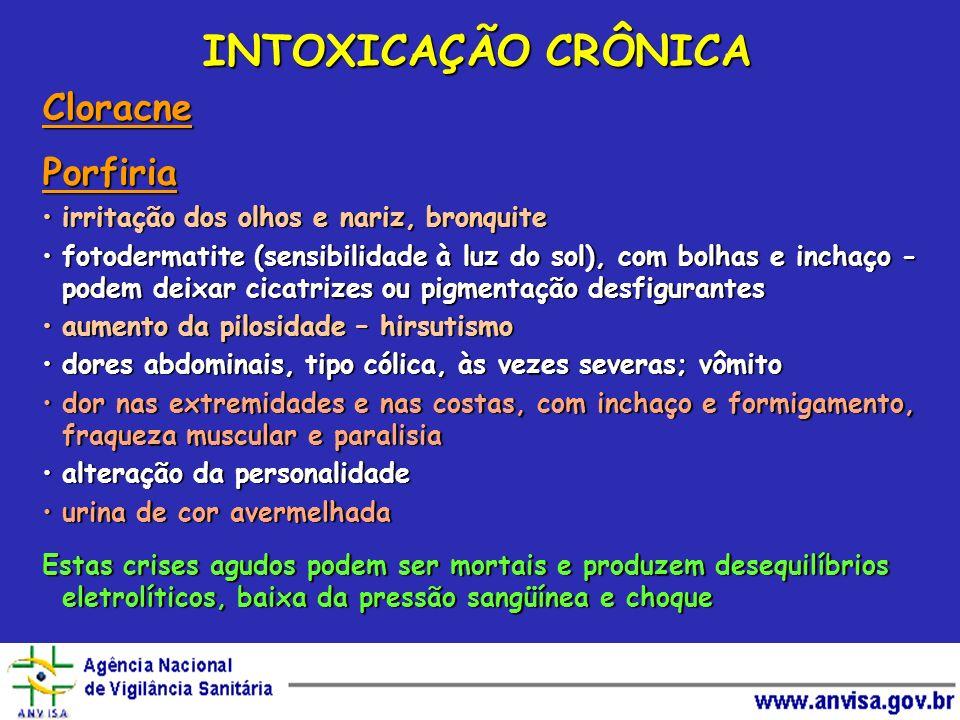 CloracnePorfiria irritação dos olhos e nariz, bronquiteirritação dos olhos e nariz, bronquite fotodermatite (sensibilidade à luz do sol), com bolhas e