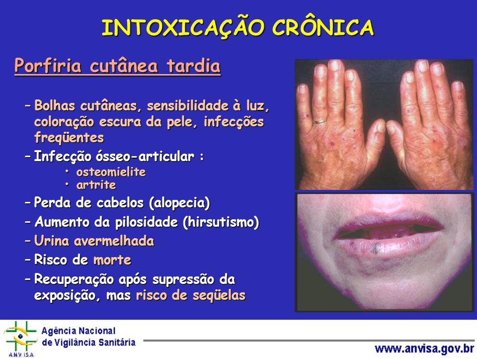 INTOXICAÇÃO CRÔNICA Porfiria cutânea tardia –Bolhas cutâneas, sensibilidade à luz, coloração escura da pele, infecções freqüentes –Infecção ósseo-arti