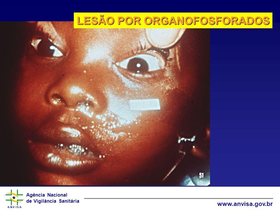 Agência Nacional de Vigilância Sanitária www.anvisa.gov.br LESÃO POR ORGANOFOSFORADOS