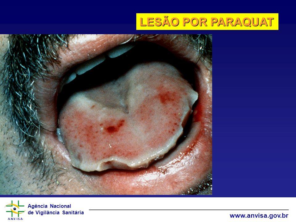 Agência Nacional de Vigilância Sanitária www.anvisa.gov.br LESÃO POR PARAQUAT