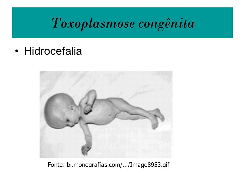 Toxoplasmose congênita Hidrocefalia Fonte: br.monografias.com/.../Image8953.gif