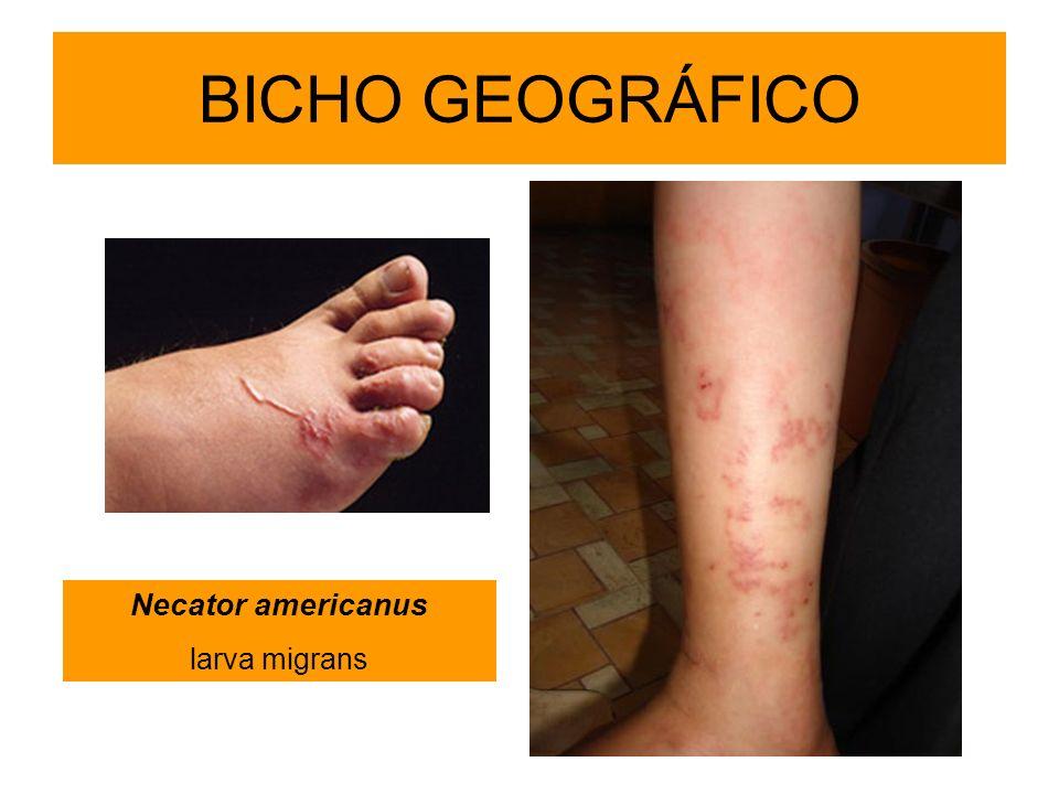 BICHO GEOGRÁFICO Necator americanus larva migrans