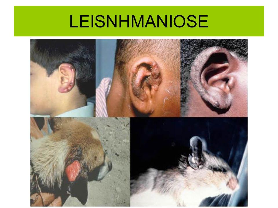 LEISNHMANIOSE
