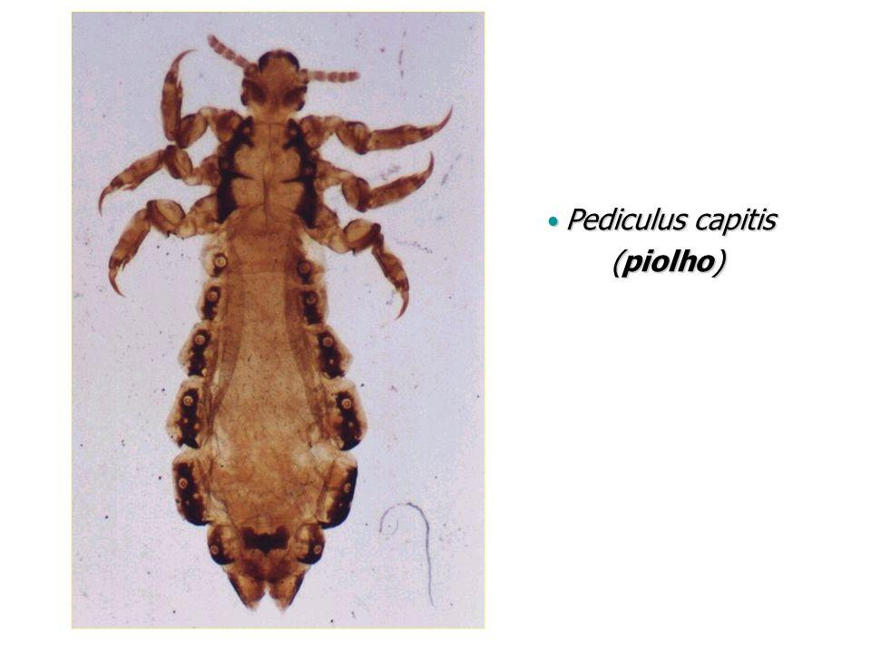 Pediculus capitis Pediculus capitis (piolho) (piolho)