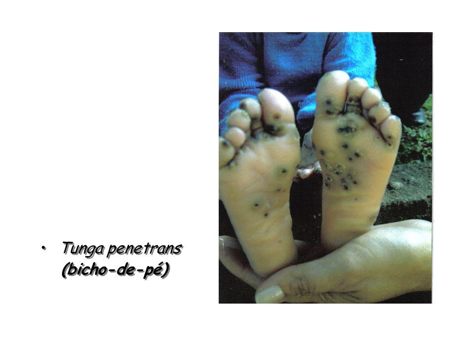 Tunga penetrans (bicho-de-pé) Tunga penetrans (bicho-de-pé)