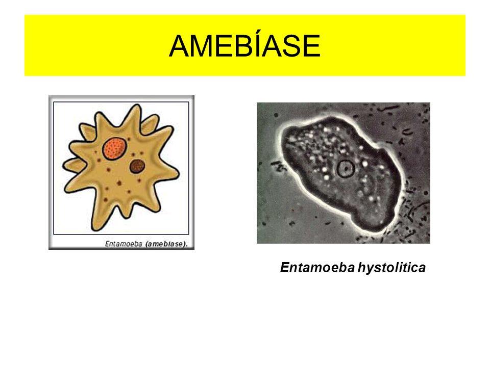 Oxiuríase - oxiúrus Enterobius vermicularis oxiúrus