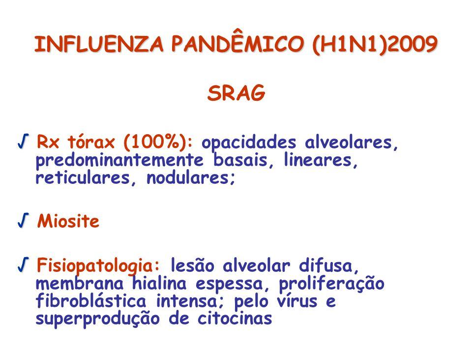 INFLUENZA PANDÊMICO (H1N1)2009 SRAG Rx tórax (100%): opacidades alveolares, predominantemente basais, lineares, reticulares, nodulares; Miosite Fisiop
