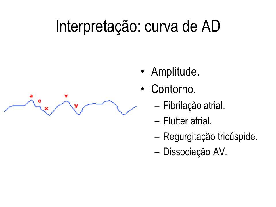 Interpretação: curva de AD Amplitude. Contorno. –Fibrilação atrial. –Flutter atrial. –Regurgitação tricúspide. –Dissociação AV.