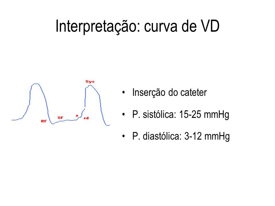 Interpretação: curva de VD Inserção do cateter P. sistólica: 15-25 mmHg P. diastólica: 3-12 mmHg