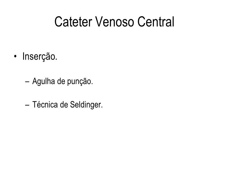 Cateter Venoso Central Inserção. –Agulha de punção. –Técnica de Seldinger.