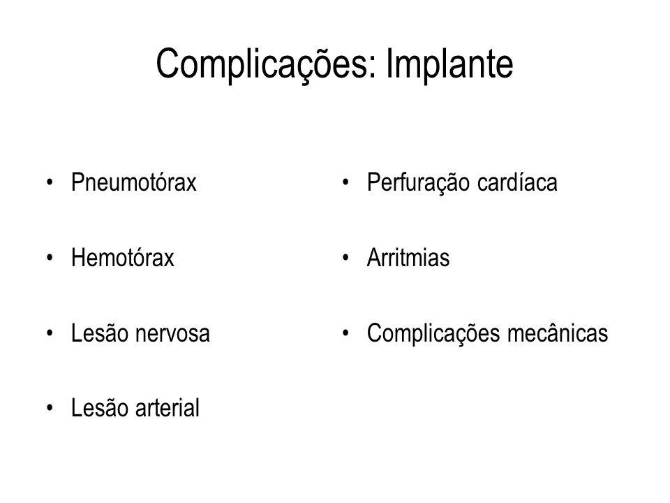 Complicações: Implante Pneumotórax Hemotórax Lesão nervosa Lesão arterial Perfuração cardíaca Arritmias Complicações mecânicas