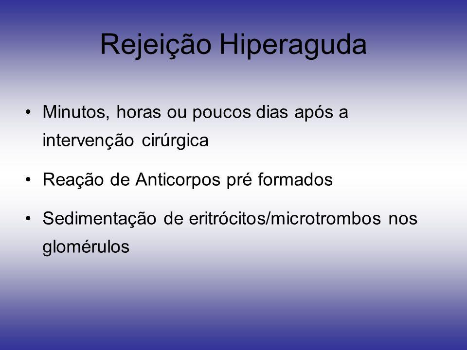 Rejeição Hiperaguda Minutos, horas ou poucos dias após a intervenção cirúrgica Reação de Anticorpos pré formados Sedimentação de eritrócitos/microtrom