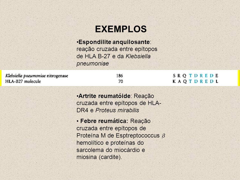 EXEMPLOS Espondilite anquilosante: reação cruzada entre epítopos de HLA B-27 e da Klebsiella pneumoniae Artrite reumatóide: Reação cruzada entre epítopos de HLA- DR4 e Proteus mirabilis Febre reumática: Reação cruzada entre epítopos de Proteína M de Esptreptococcus hemolítico e proteínas do sarcolema do miocárdio e miosina (cardite).