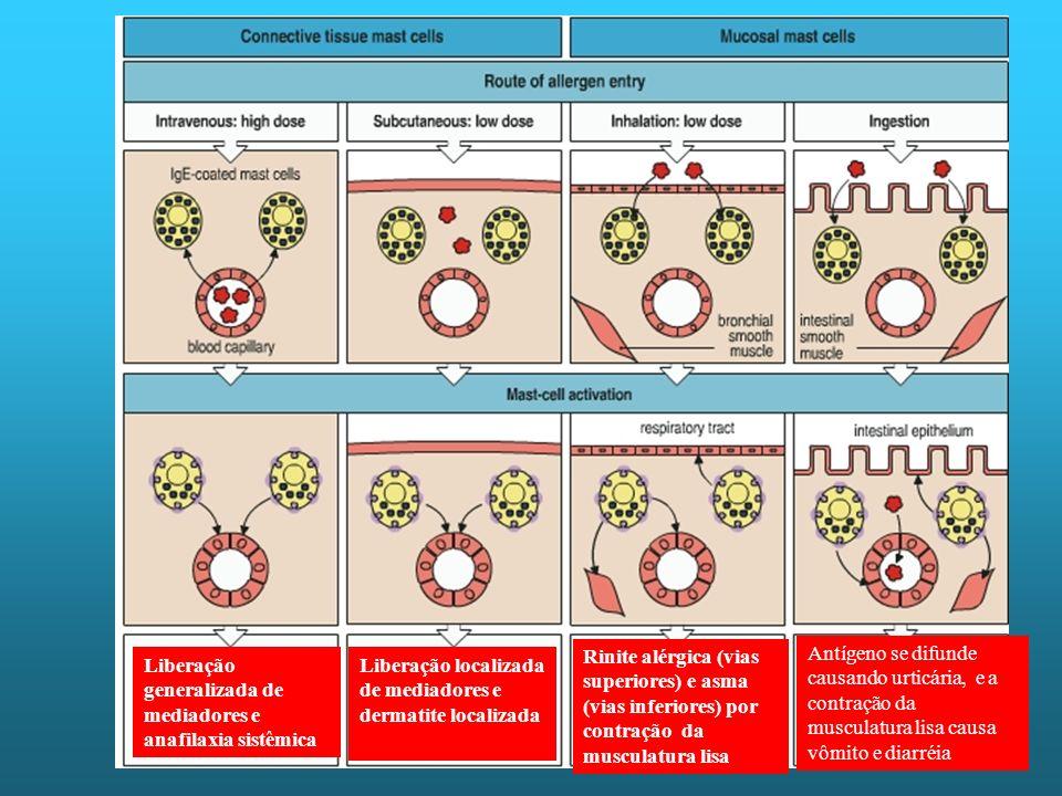 Liberação generalizada de mediadores e anafilaxia sistêmica Liberação localizada de mediadores e dermatite localizada Rinite alérgica (vias superiores