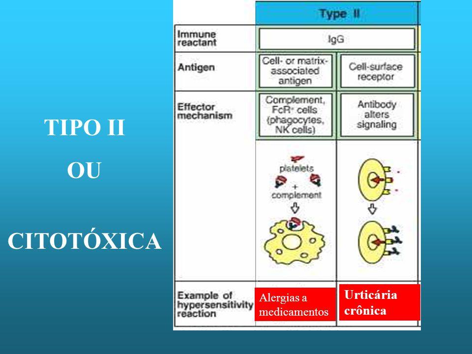TIPO II OU CITOTÓXICA Alergias a medicamentos Urticária crônica