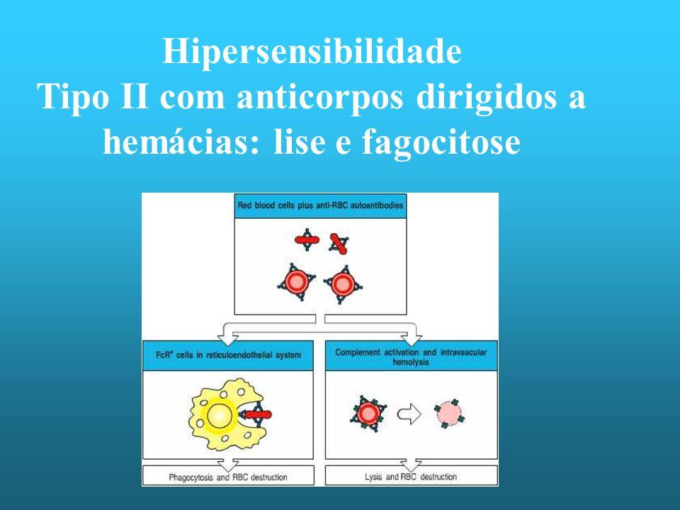 Hipersensibilidade Tipo II com anticorpos dirigidos a hemácias: lise e fagocitose