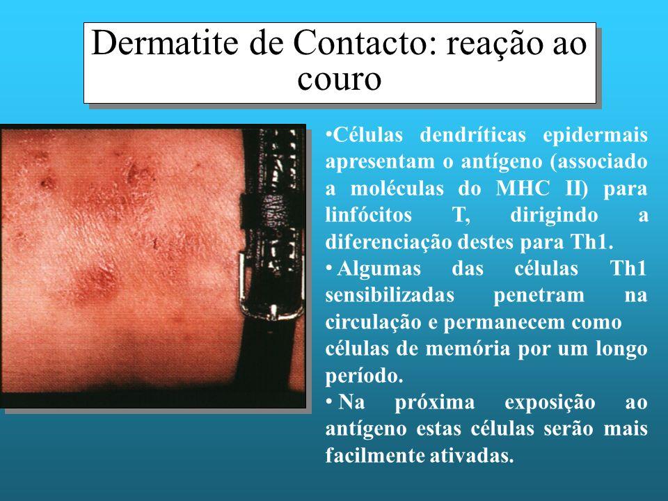 Dermatite de Contacto: reação ao couro Células dendríticas epidermais apresentam o antígeno (associado a moléculas do MHC II) para linfócitos T, dirig