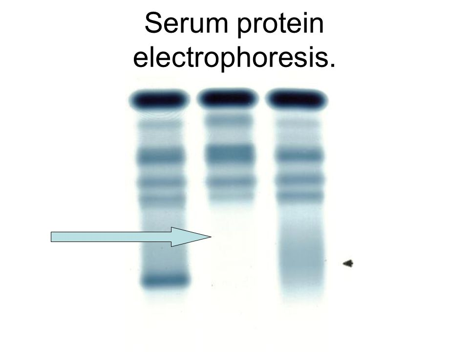 Serum protein electrophoresis.