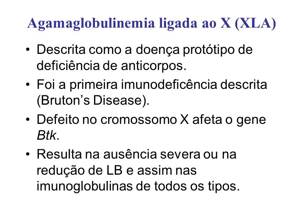 Agamaglobulinemia ligada ao X (XLA) Descrita como a doença protótipo de deficiência de anticorpos. Foi a primeira imunodeficência descrita (Brutons Di