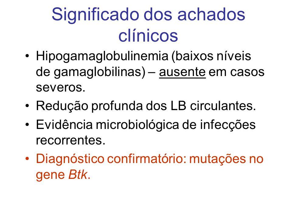 Significado dos achados clínicos Hipogamaglobulinemia (baixos níveis de gamaglobilinas) – ausente em casos severos. Redução profunda dos LB circulante