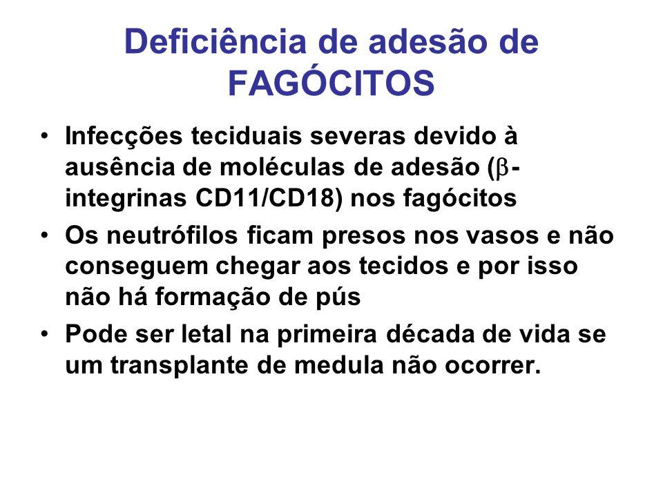 Deficiência de adesão de FAGÓCITOS Infecções teciduais severas devido à ausência de moléculas de adesão ( - integrinas CD11/CD18) nos fagócitos Os neu
