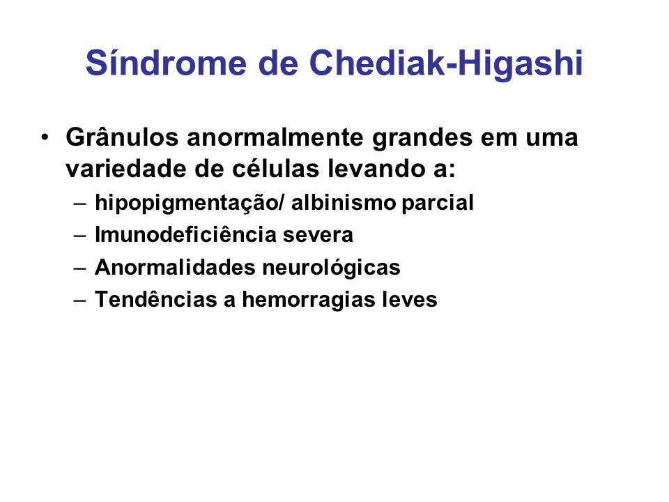 Síndrome de Chediak-Higashi Grânulos anormalmente grandes em uma variedade de células levando a: –hipopigmentação/ albinismo parcial –Imunodeficiência