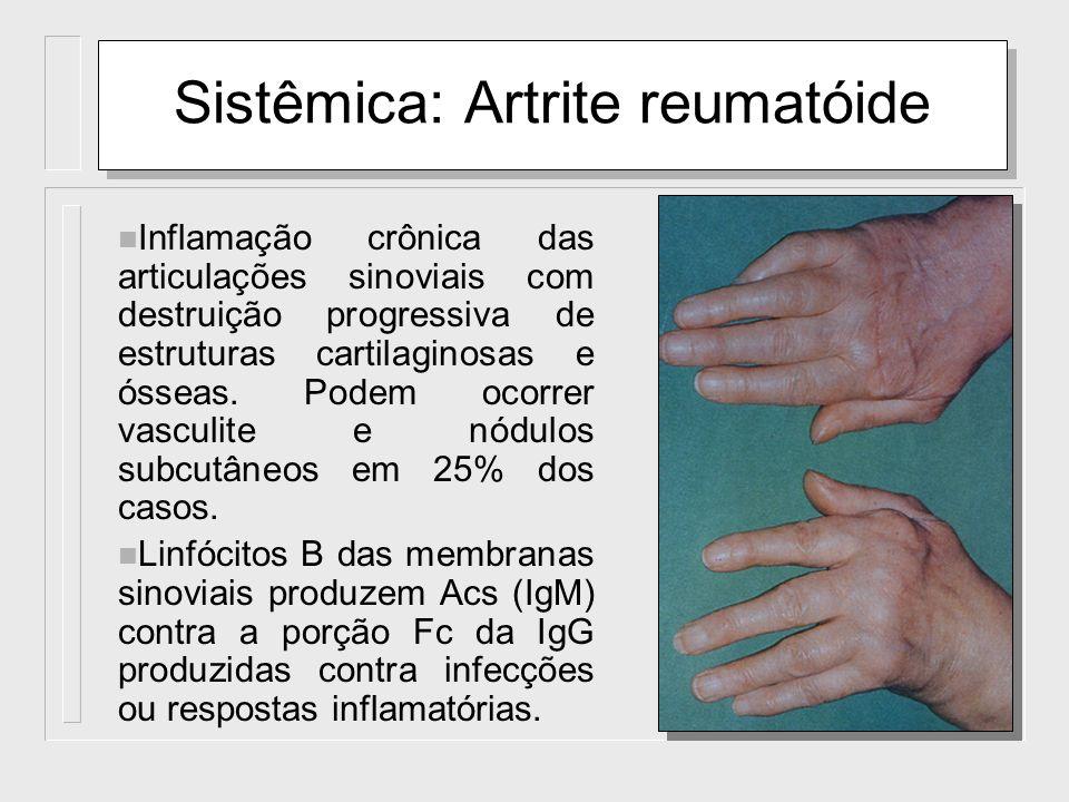 Sistêmica: Artrite reumatóide n Inflamação crônica das articulações sinoviais com destruição progressiva de estruturas cartilaginosas e ósseas. Podem