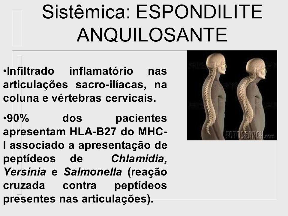 Sistêmica: ESPONDILITE ANQUILOSANTE Infiltrado inflamatório nas articulações sacro-ilíacas, na coluna e vértebras cervicais. 90% dos pacientes apresen