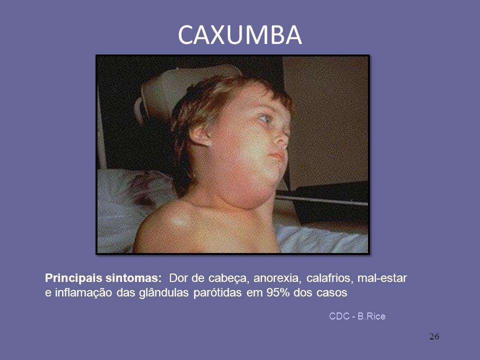26 CAXUMBA CDC - B.Rice Principais sintomas: Dor de cabeça, anorexia, calafrios, mal-estar e inflamação das glândulas parótidas em 95% dos casos
